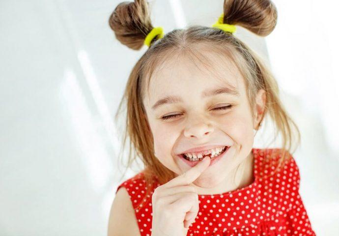 עקירת שן נשירה