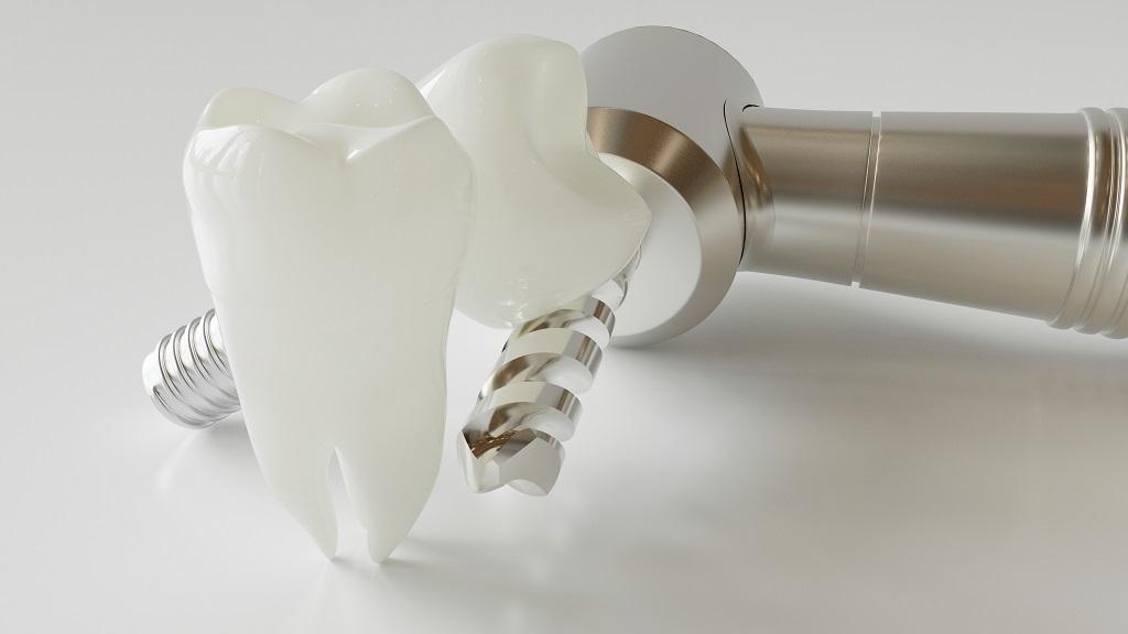 ניתוחים ושיקום הפה