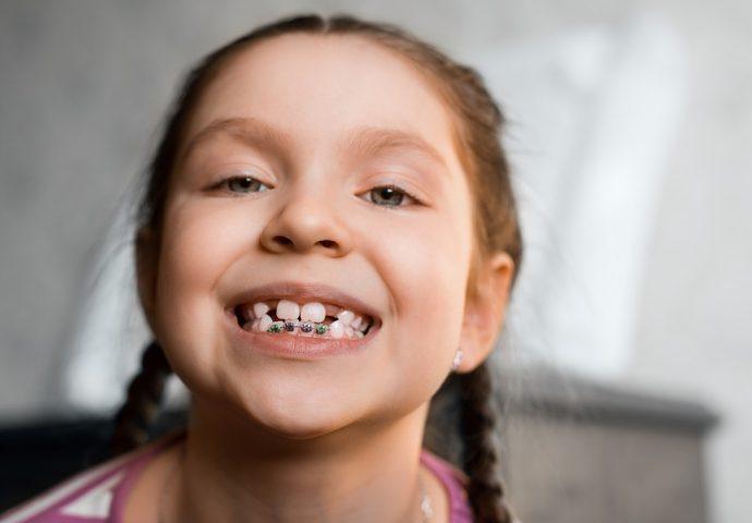 יישור שיניים ילדים ונוער